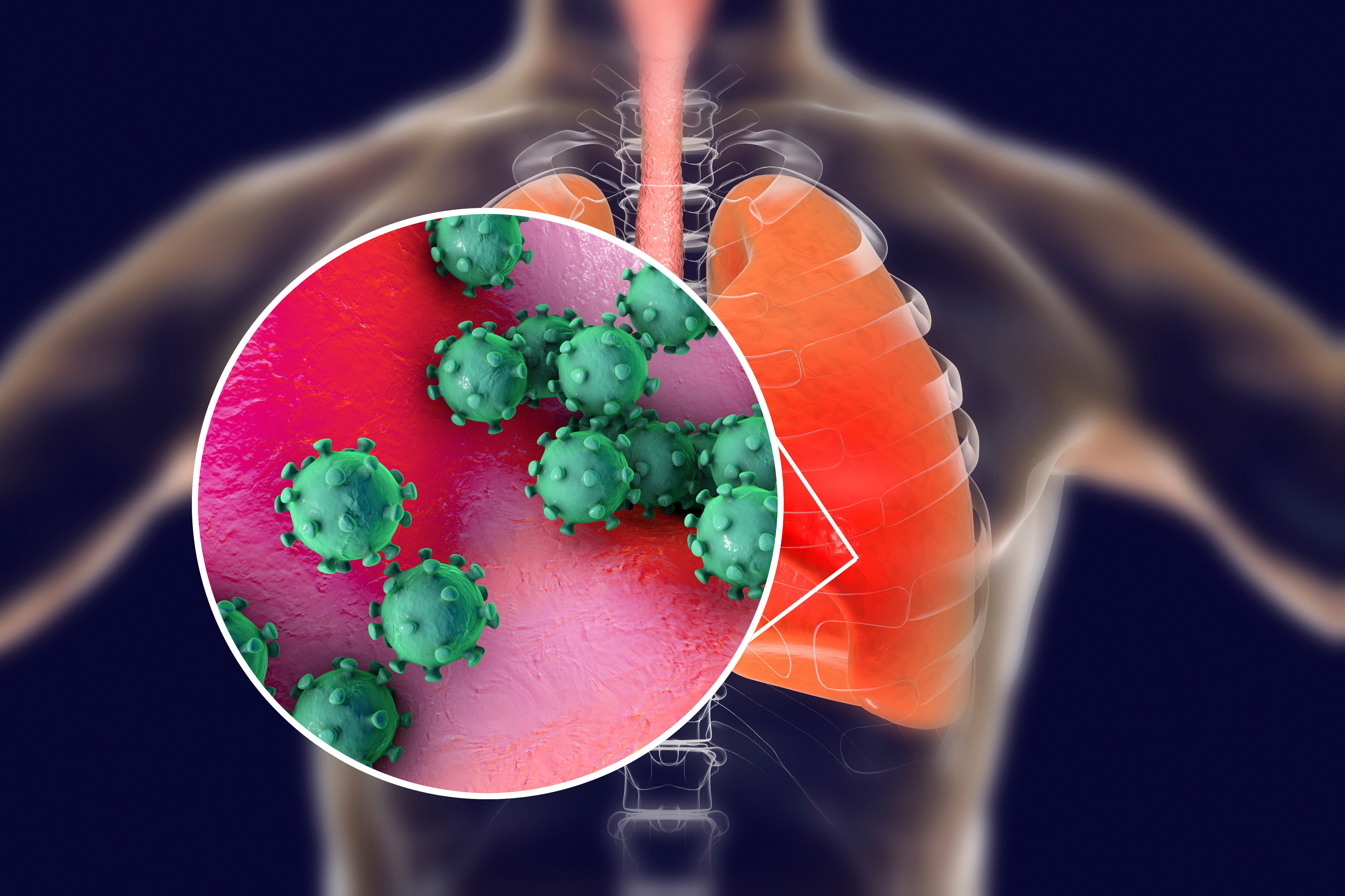 Coronavirus could pose a threat for those with asthma, stock image shows viral pneumonia in the lungs