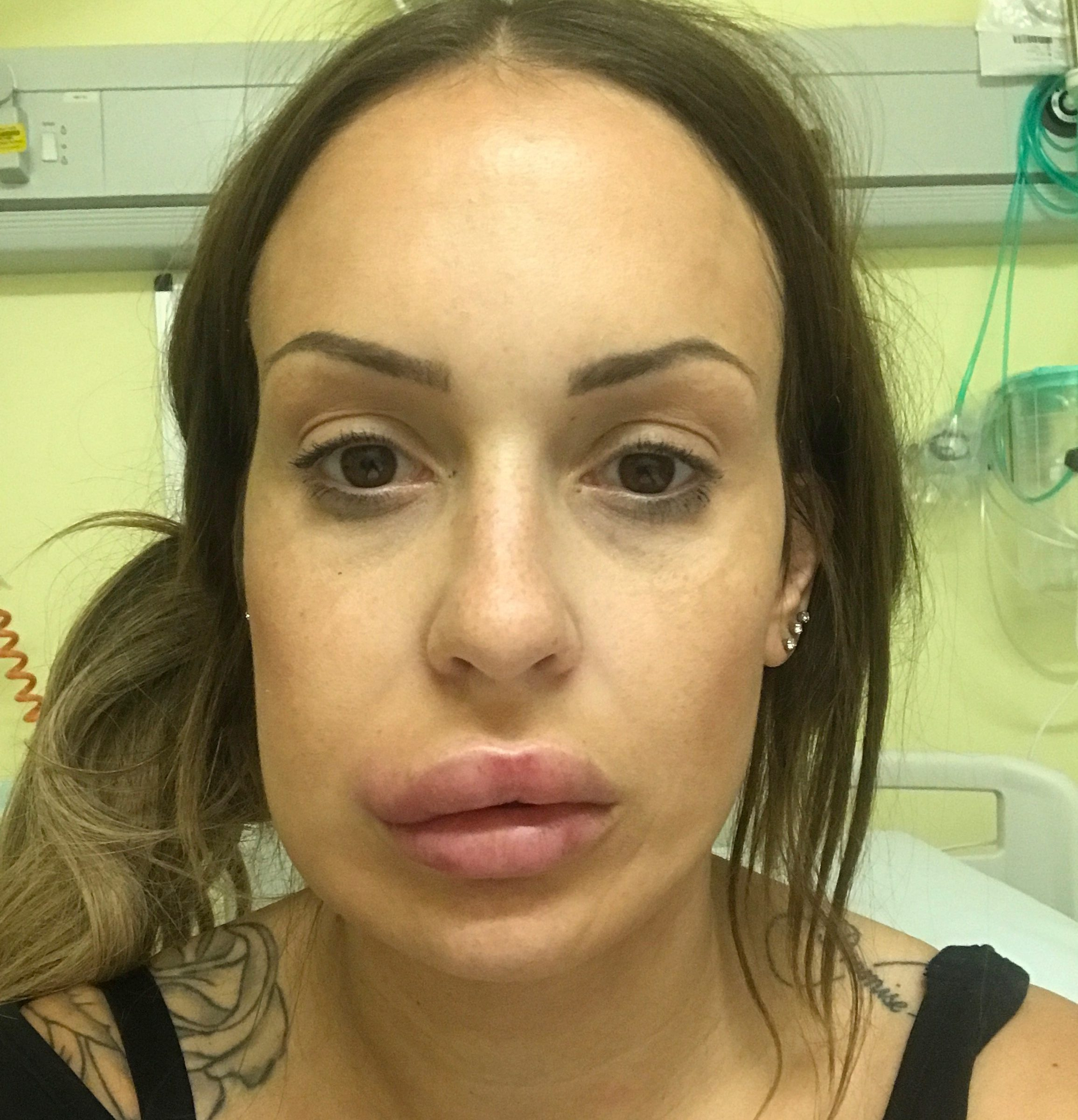 Mum-of-two Siobhan Phelan, 30, nearly lost her top lip after paying £125 for lip fillers she saw on Facebook