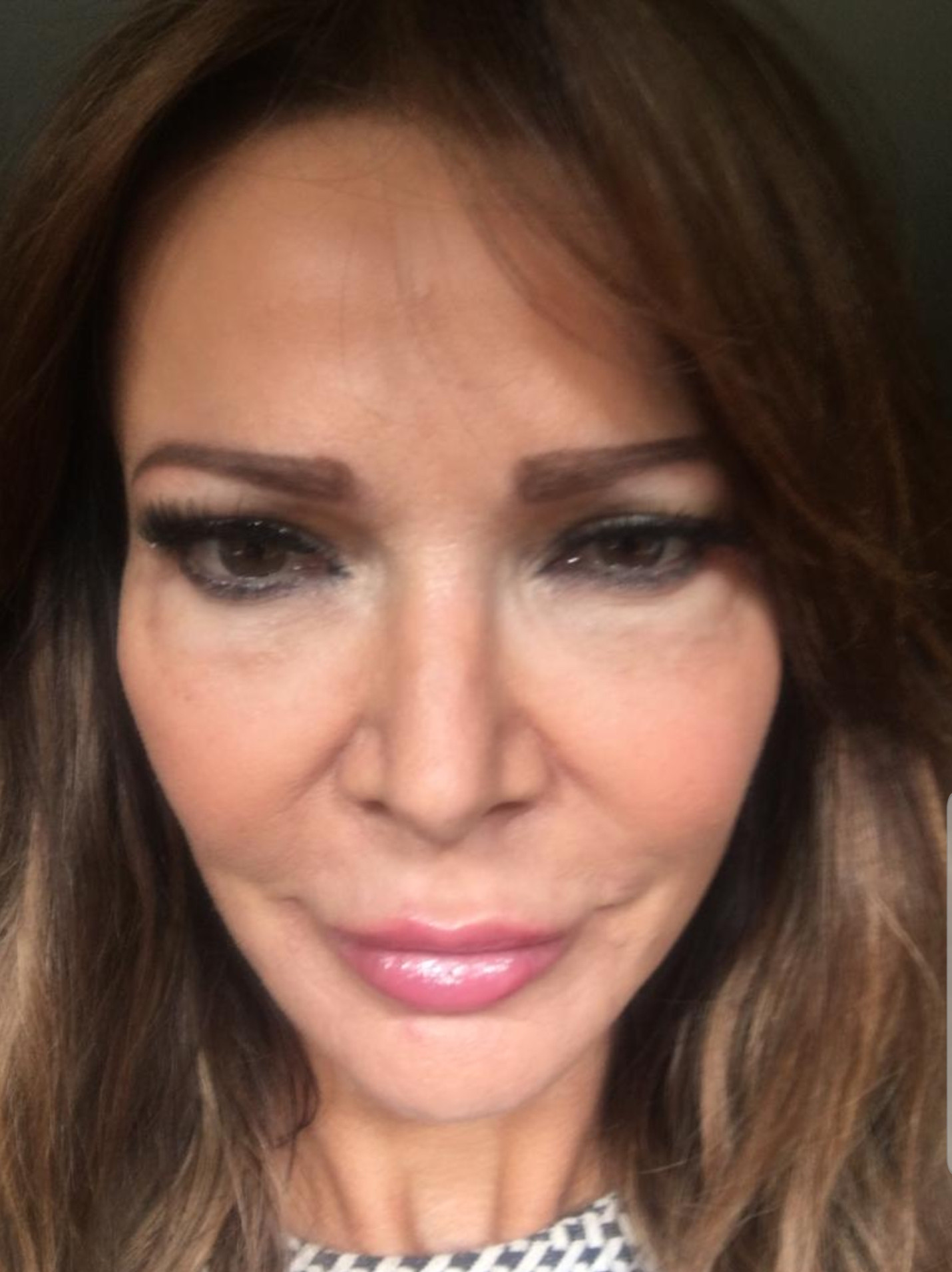 Lizzie Cundy was left with swollen under eyes and blurred vision after having filler injected into her eye sockets