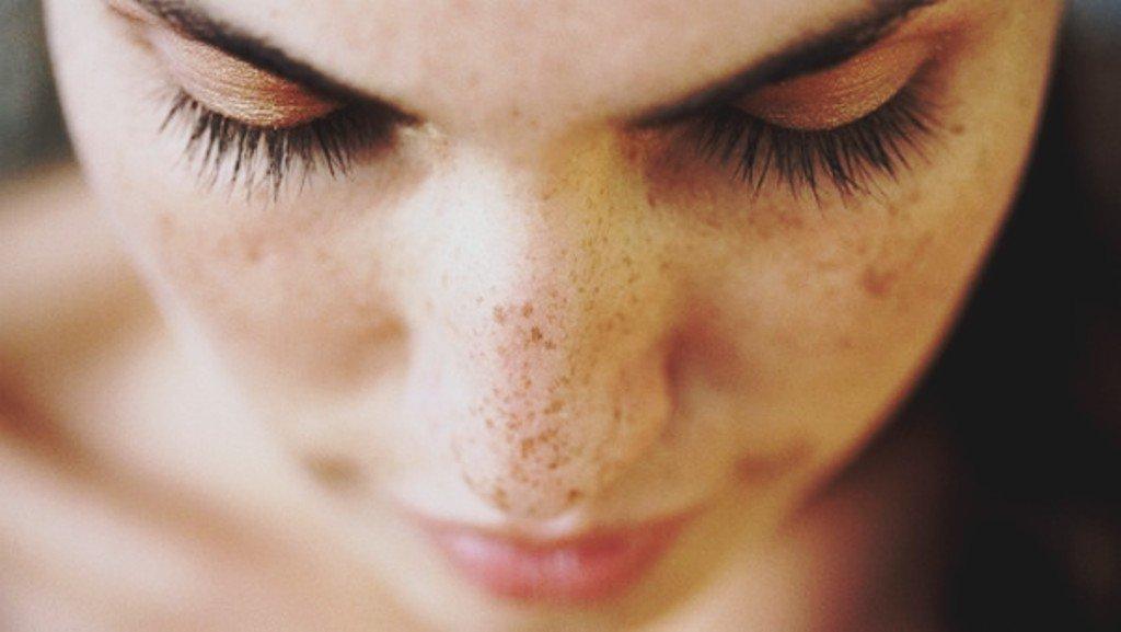 Dark Spots on Skin