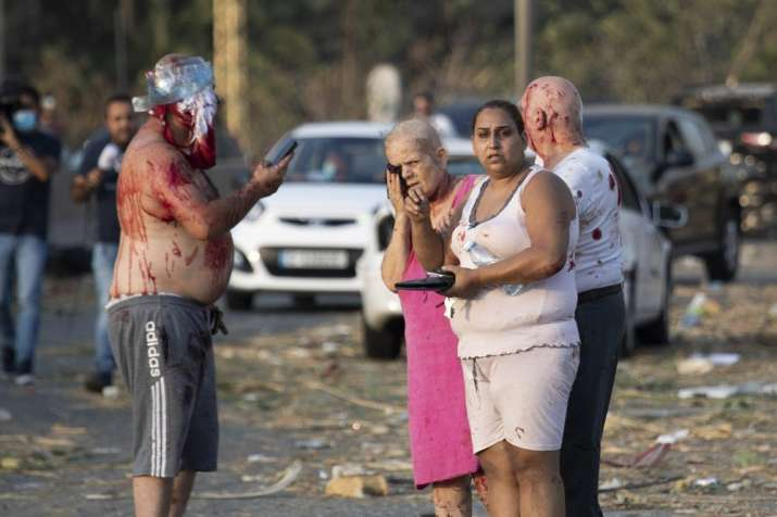 India Tv - Injured people stand after a massive explosion in Beirut, Lebanon, Tuesday, Aug. 4, 2020. (AP Photo/